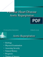 Aortic Regurgitation