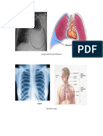 Lungs With Pleural Effusion