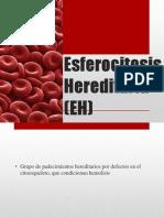 Esferocitosis Her Edit Aria (EH)