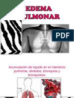 Edema Pulmonar e Infarto Pulmonar