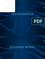 Estenosis Mitral Presentacion(2)