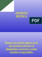 Artritis - Osteomielitis