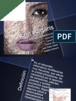 Acné vulgaris