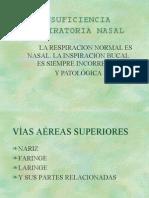 Insuficiencia Ventilatoria Nasal