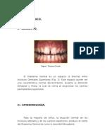 monografía de diastema central