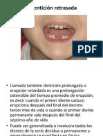 Dentición retrasada