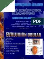 f723e85f64 procedimientos_clinicos   Ojo humano   Lentes