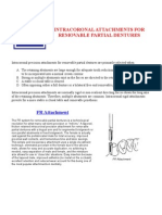 Intracoronal Attachments for Removable Partial Dentures