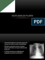 Neoplasias en pulmón - copia