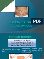 Expo Sic Ion En Dome Trios Is y Adenomiosis Final