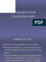 Tomografía_Axial_Computada
