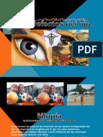 Defectos y EnferEnfermedades en Los Ojos