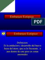 EMBARAZO Ectopico Para Carlitos
