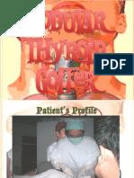 Nodular Thyroid Goiter