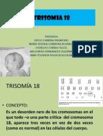 trisomía 18