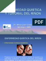 Enfermedad Quistica y Tumoral Del RiÑon