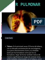 Cancer Pulmonar Rubi