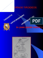 trantornos tiroideos