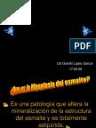 Hipoplasia Ppt