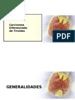 Tema 46 - Carcinoma Diferenciado Tiroides
