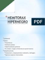 HEMITORAX hipernegro