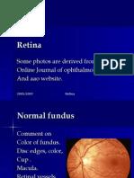 Retina Stud