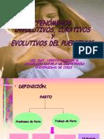 Puerperio
