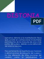 DISTONIA
