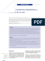 DISPLASIA ECTODERMICA ANHIDROTICA