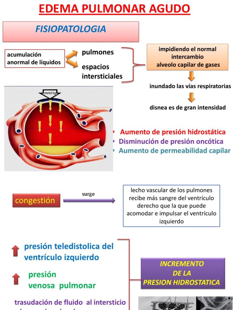 Pulmonar edema presión de