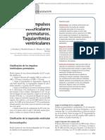 08.014 Impulsos Ventriculares Prematuros Taquiarritmias Ventriculares