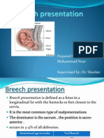Breech Presentation-Muhammad Nzar