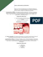 Algunas enfermedades periodontales