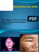 Unc 5 Mitos y Real Ida Des Del Acne