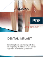 Dental Implant - Copy