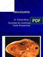 Valvulopatias1