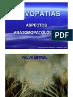 VALVOPATIAS ADQUIRIDAS - Doença Reumática
