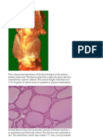 ENDOCRINE PATHOLOGY Webpath