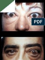 ORBITA y oftalmopatía tiroidea