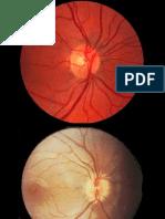 Retinopatia esclerohipertensiva.071105