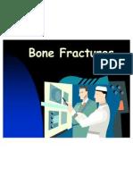 bone fx x rays