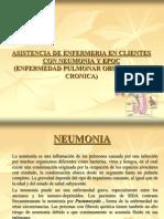 cia de Enfermeria en Neumonia