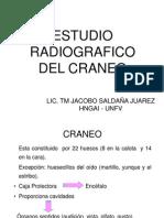 11. Craneo