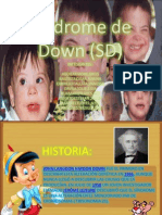 Síndrome de Down (SD)