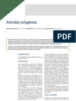 Aniridia congenita