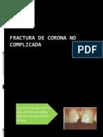 Fractura de Corona No Complicada