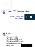 12 Lead ECG Interpretation
