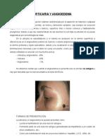 28-11. Urticaria y Angioedema