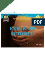Embarazoectópico