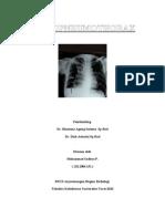 hidropneumothorax